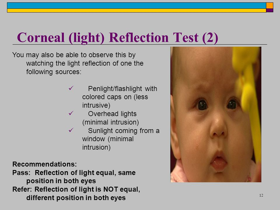 12 Corneal (light) Reflection Test (2) You may also be able to observe this by watching the light reflection of one the following sources: Penlight/flashlight with colored caps on (less intrusive) Overhead lights (minimal intrusion) Sunlight coming from a window (minimal intrusion) Recommendations: Pass: Reflection of light equal, same position in both eyes Refer: Reflection of light is NOT equal, different position in both eyes