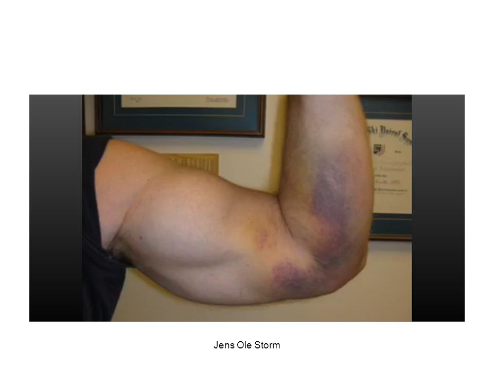 2007 Background: Complete biceps tendon avulsions are frequently missed on clinical examination, suggesting the need for a reliable diagnostic test.