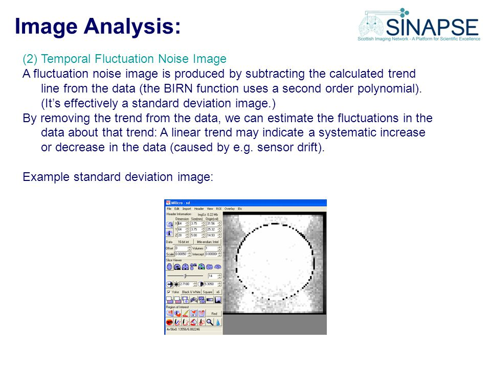 Image Analysis: (2) Temporal Fluctuation Noise Image A fluctuation noise image is produced by subtracting the calculated trend line from the data (the