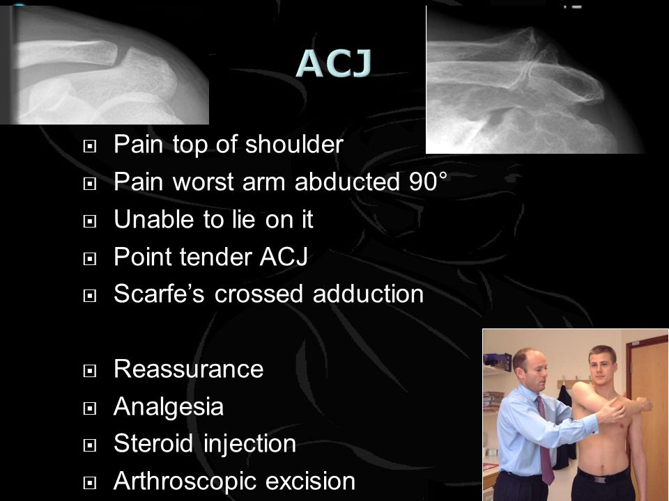 Pain top of shoulder Pain worst arm abducted 90° Unable to lie on it Point tender ACJ Scarfes crossed adduction Reassurance Analgesia Steroid injectio