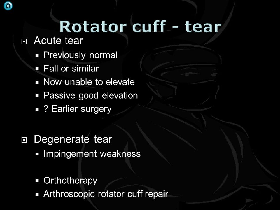 Acute tear Previously normal Fall or similar Now unable to elevate Passive good elevation ? Earlier surgery Degenerate tear Impingement weakness Ortho