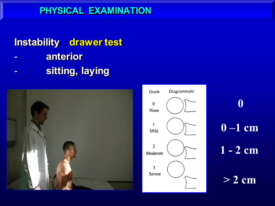 0 0 –1 cm 1 - 2 cm > 2 cm Instabilitydrawer test -anterior -sitting, laying Instabilitydrawer test -anterior -sitting, laying PHYSICAL EXAMINATION