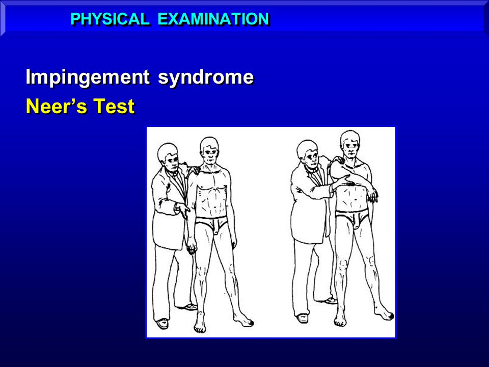 Impingement syndrome Neers Test Impingement syndrome Neers Test PHYSICAL EXAMINATION