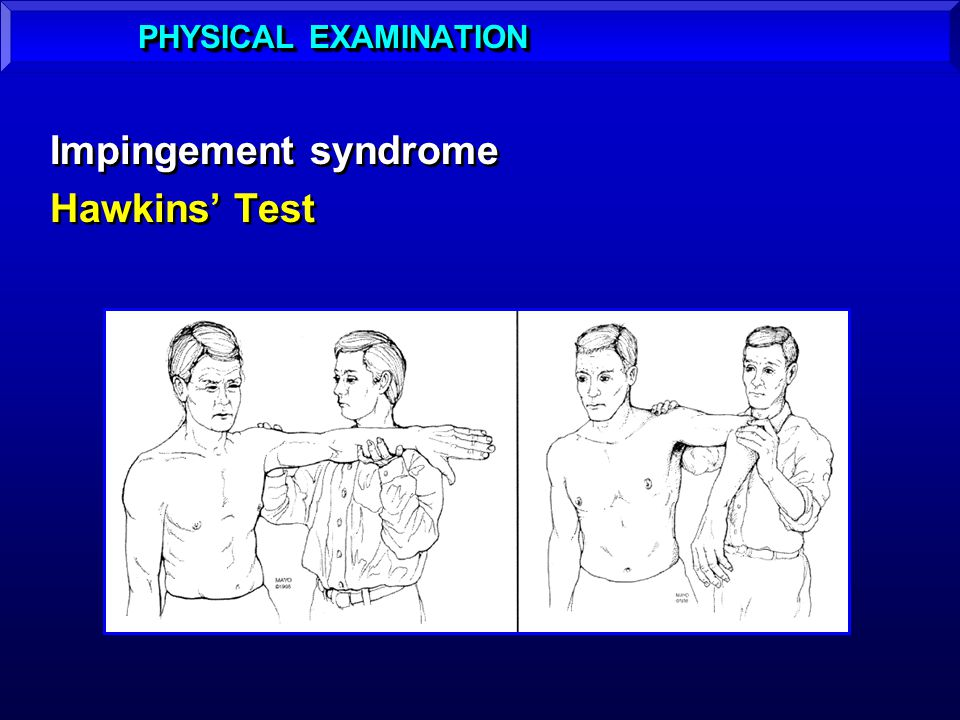 Impingement syndrome Hawkins Test Impingement syndrome Hawkins Test PHYSICAL EXAMINATION