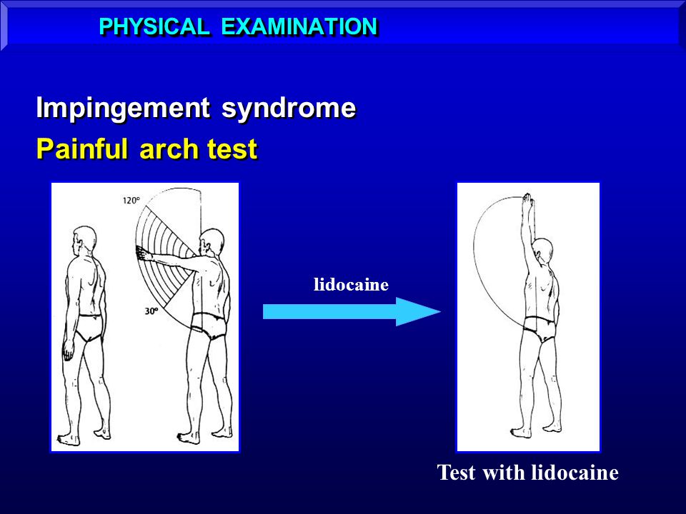 Impingement syndrome Painful arch test Impingement syndrome Painful arch test PHYSICAL EXAMINATION lidocaine Test with lidocaine