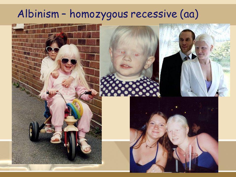 Albinism – homozygous recessive (aa)