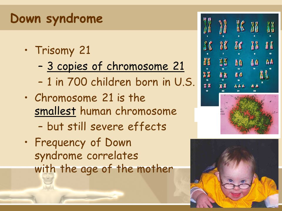 Down syndrome Trisomy 21 –3 copies of chromosome 21 –1 in 700 children born in U.S. Chromosome 21 is the smallest human chromosome –but still severe e