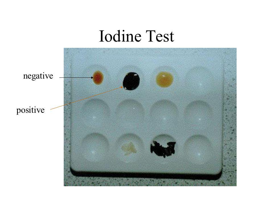 Iodine Test negative positive