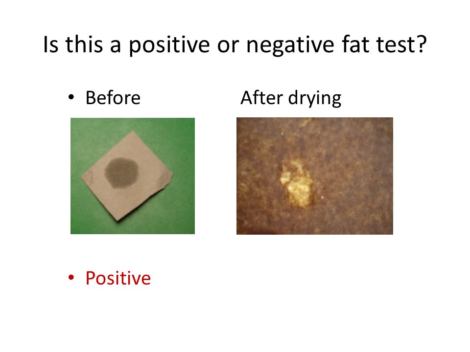 Is this a positive or negative fat test? Before After drying Positive