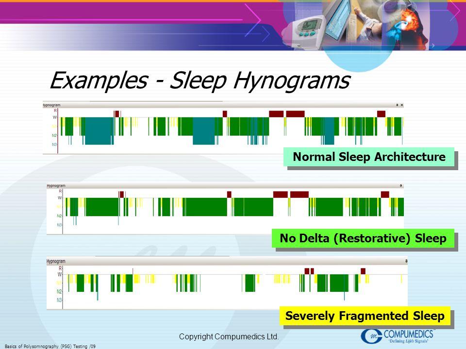Copyright Compumedics Ltd. Basics of Polysomnography (PSG) Testing /09 Examples - Sleep Hynograms Normal Sleep Architecture No Delta (Restorative) Sle