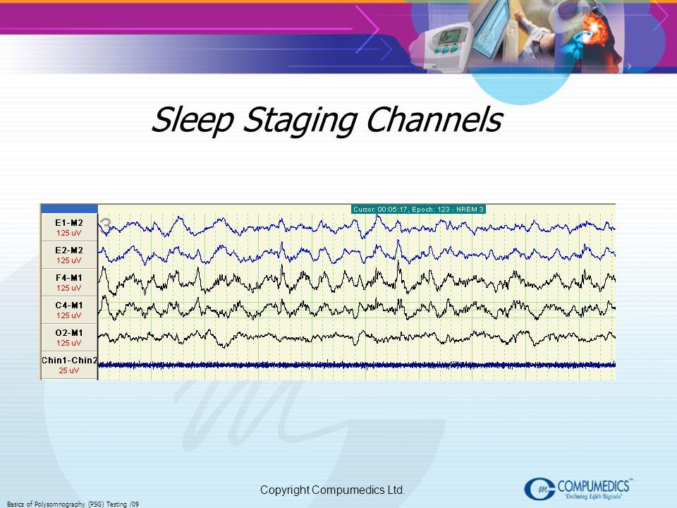 Copyright Compumedics Ltd. Basics of Polysomnography (PSG) Testing /09 Sleep Staging Channels