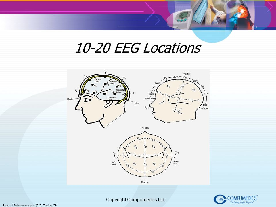Copyright Compumedics Ltd. Basics of Polysomnography (PSG) Testing /09 10-20 EEG Locations