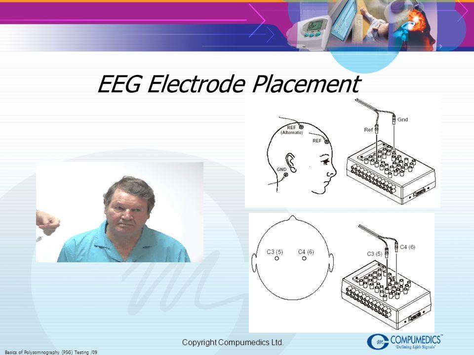 Copyright Compumedics Ltd. Basics of Polysomnography (PSG) Testing /09 EEG Electrode Placement