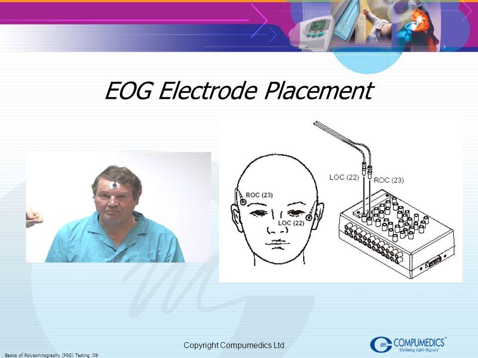 Copyright Compumedics Ltd. Basics of Polysomnography (PSG) Testing /09 EOG Electrode Placement