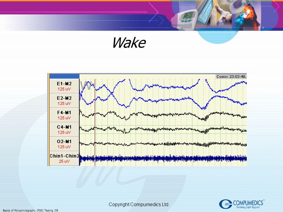 Copyright Compumedics Ltd. Basics of Polysomnography (PSG) Testing /09 Wake