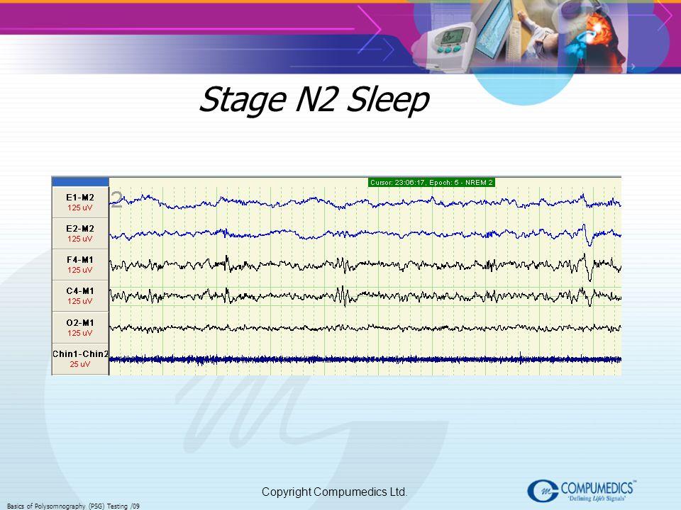 Copyright Compumedics Ltd. Basics of Polysomnography (PSG) Testing /09 Stage N2 Sleep
