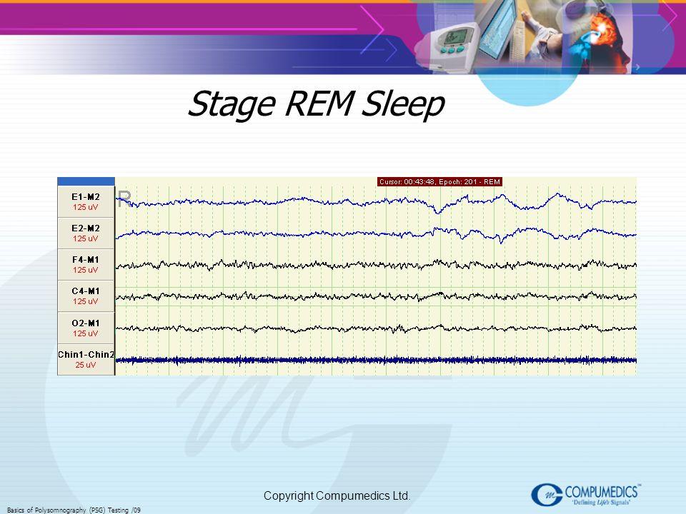 Copyright Compumedics Ltd. Basics of Polysomnography (PSG) Testing /09 Stage REM Sleep