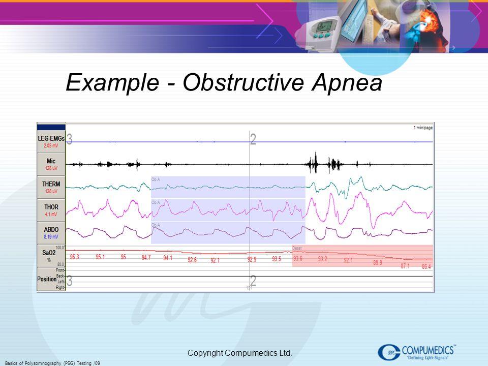 Copyright Compumedics Ltd. Basics of Polysomnography (PSG) Testing /09 Example - Obstructive Apnea