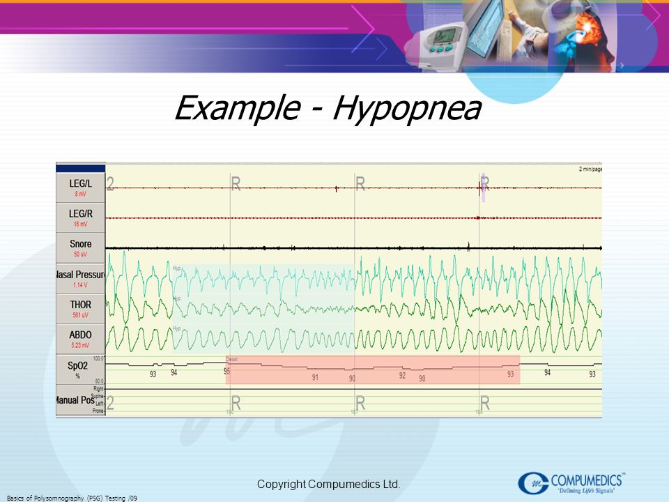 Copyright Compumedics Ltd. Basics of Polysomnography (PSG) Testing /09 Example - Hypopnea