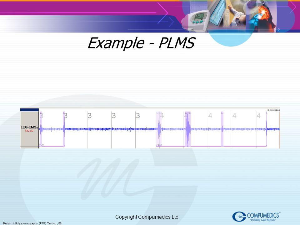 Copyright Compumedics Ltd. Basics of Polysomnography (PSG) Testing /09 Example - PLMS