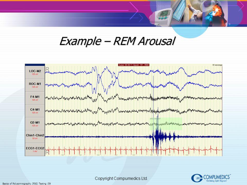 Copyright Compumedics Ltd. Basics of Polysomnography (PSG) Testing /09 Example – REM Arousal