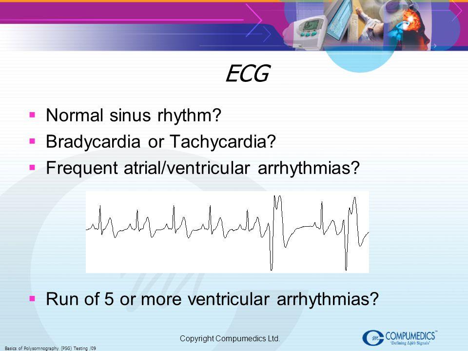 Copyright Compumedics Ltd. Basics of Polysomnography (PSG) Testing /09 ECG Normal sinus rhythm? Bradycardia or Tachycardia? Frequent atrial/ventricula