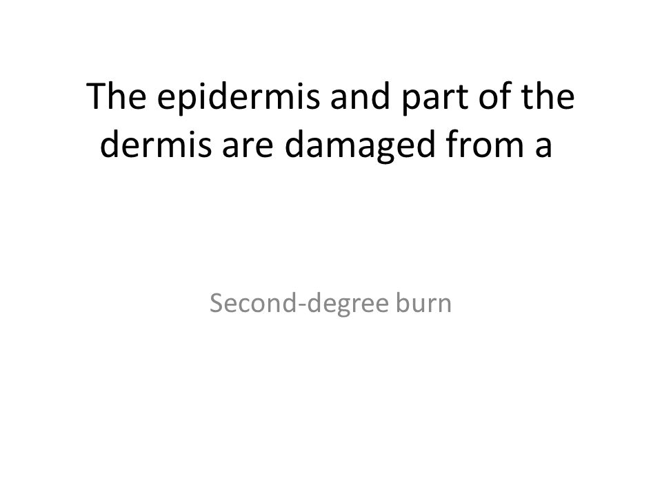 The epidermis and part of the dermis are damaged from a Second-degree burn