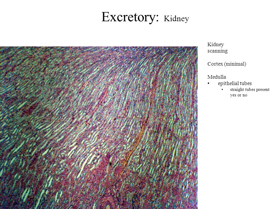 Excretory: Kidney Kidney scanning Cortex (minimal) Medulla epithelial tubes straight tubes present yes or no