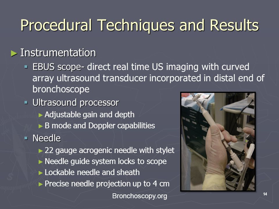 14 Procedural Techniques and Results Instrumentation Instrumentation EBUS scope- EBUS scope- direct real time US imaging with curved array ultrasound transducer incorporated in distal end of bronchoscope Ultrasound processor Ultrasound processor Adjustable gain and depth B mode and Doppler capabilities Needle Needle 22 gauge acrogenic needle with stylet Needle guide system locks to scope Lockable needle and sheath Precise needle projection up to 4 cm Bronchoscopy.org 14