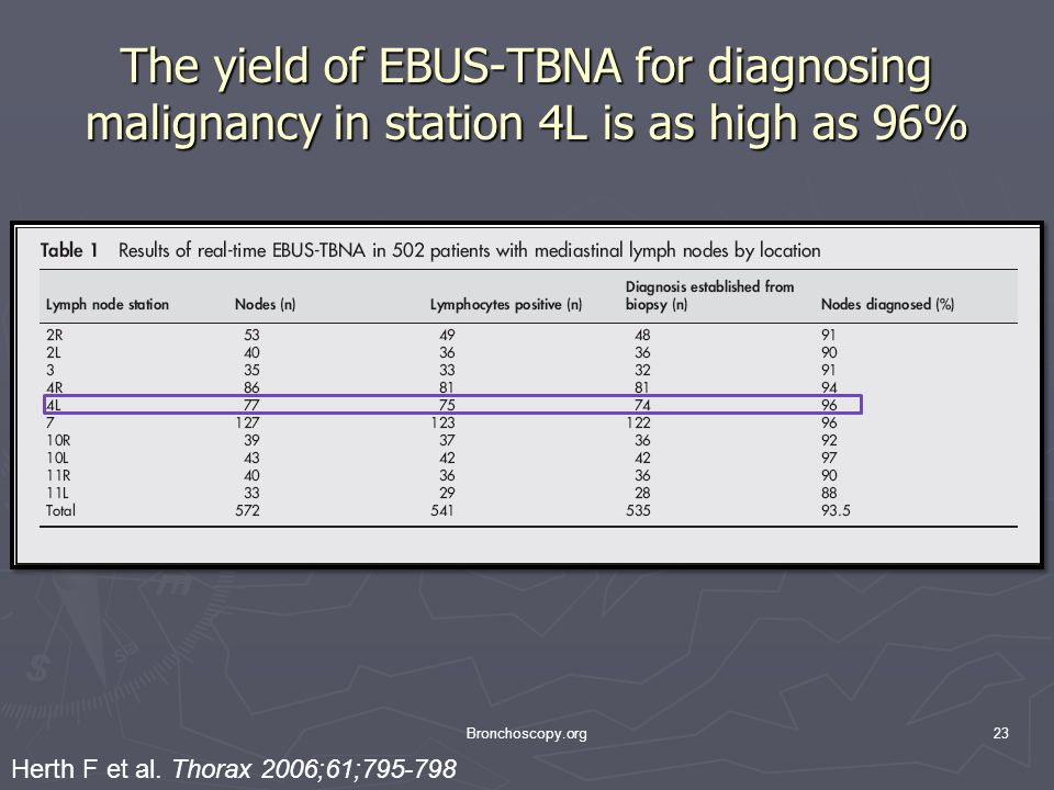 The yield of EBUS-TBNA for diagnosing malignancy in station 4L is as high as 96% Bronchoscopy.org23 Herth F et al.