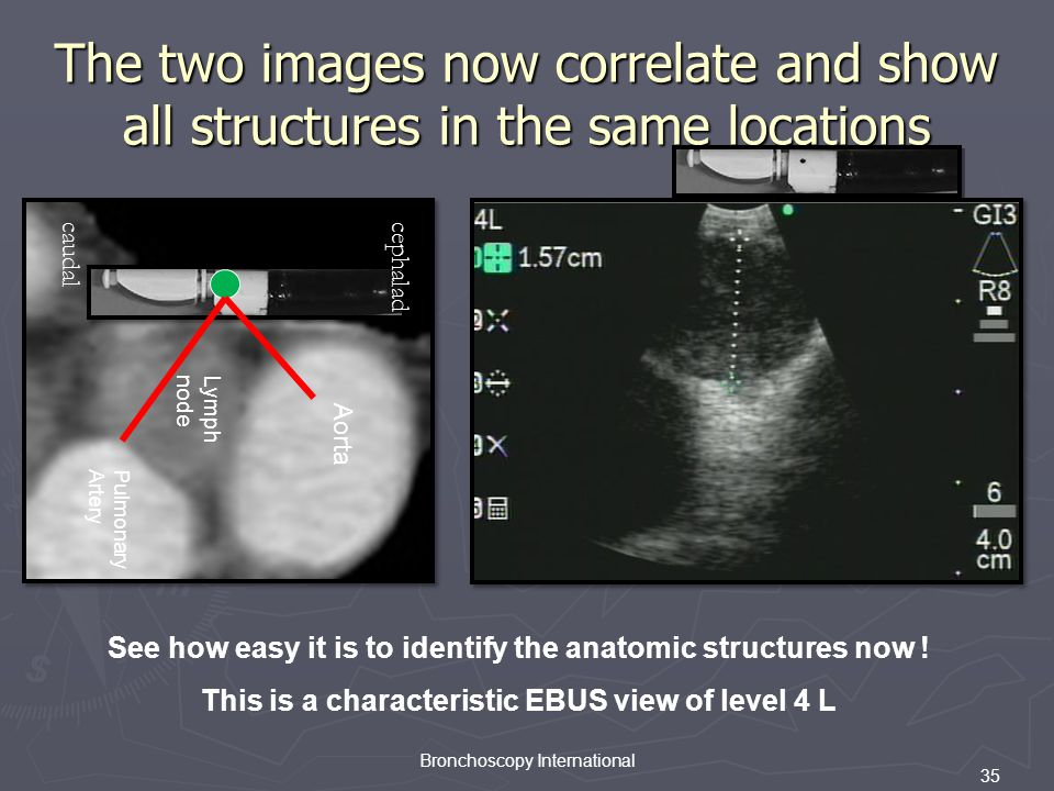 35 Bronchoscopy International The two images now correlate and show all structures in the same locations PA Ao LN caudal cephalad Aorta Pulmonary Artery Lymph node See how easy it is to identify the anatomic structures now .