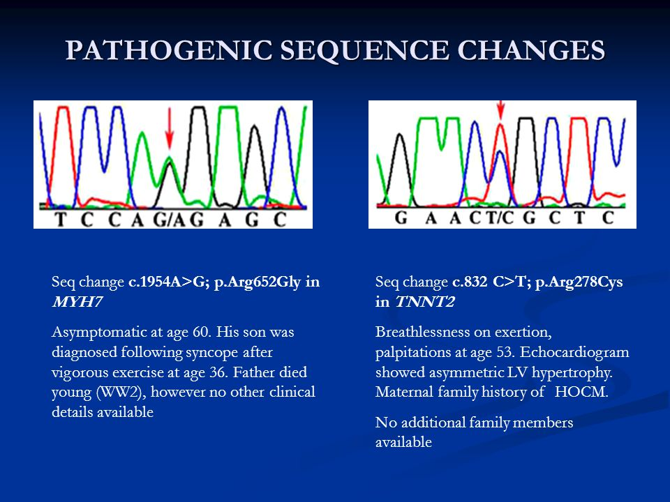 PATHOGENIC SEQUENCE CHANGES Seq change c.1954A>G; p.Arg652Gly in MYH7 Asymptomatic at age 60. His son was diagnosed following syncope after vigorous e