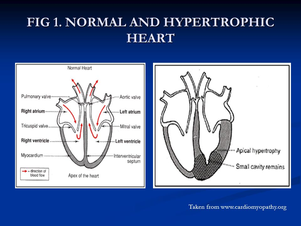FIG 1. NORMAL AND HYPERTROPHIC HEART Taken from www.cardiomyopathy.org