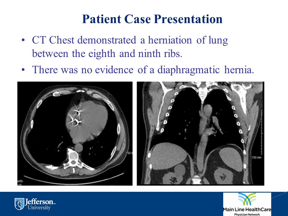 Patient Case Presentation CT Chest demonstrated a herniation of lung between the eighth and ninth ribs. There was no evidence of a diaphragmatic herni