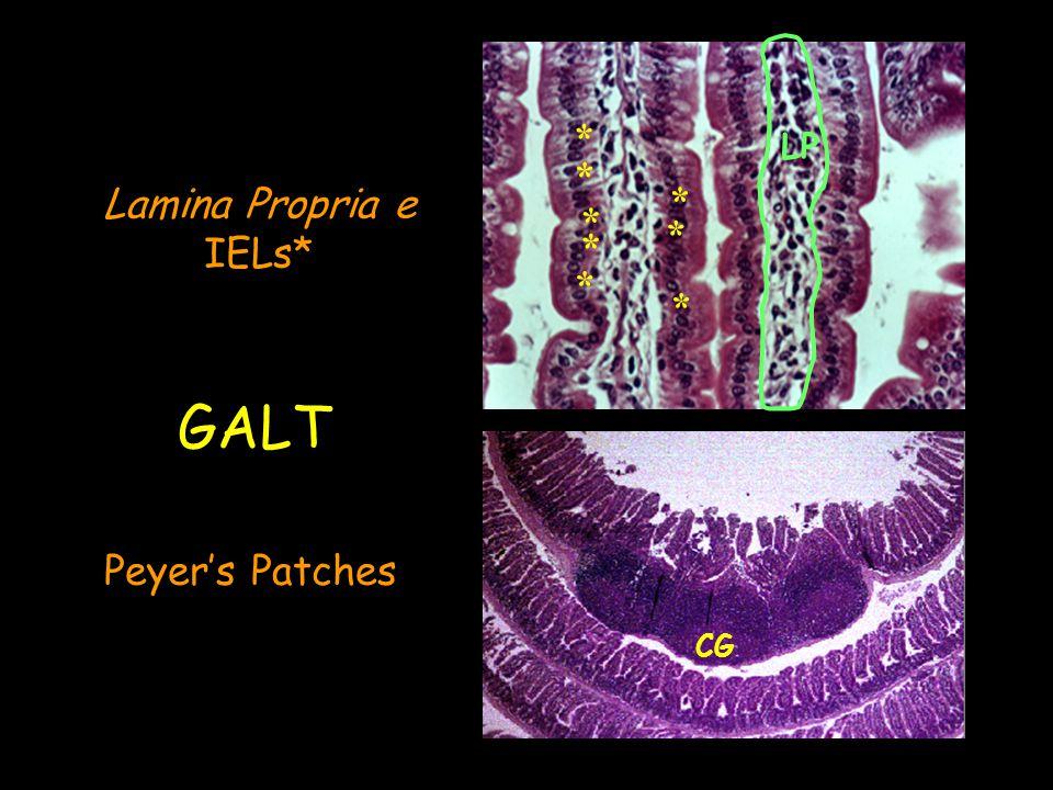Peyers patch lamina propria M cell GALT – Gut Associated Lymphoid Tissue IEL IL-7 SCF c-kit RAG E-cadherin E 7 epithelial Villus GC LT Y Y Y Y Y Y Y Y IgA Y Y Y Y HEV IEL LT LB CD8 + CD4 + Efferent lymphatics M cell Y TGF /IL10/IL-4 IgA IL-6 MAdCAM-1 Epithelial cells
