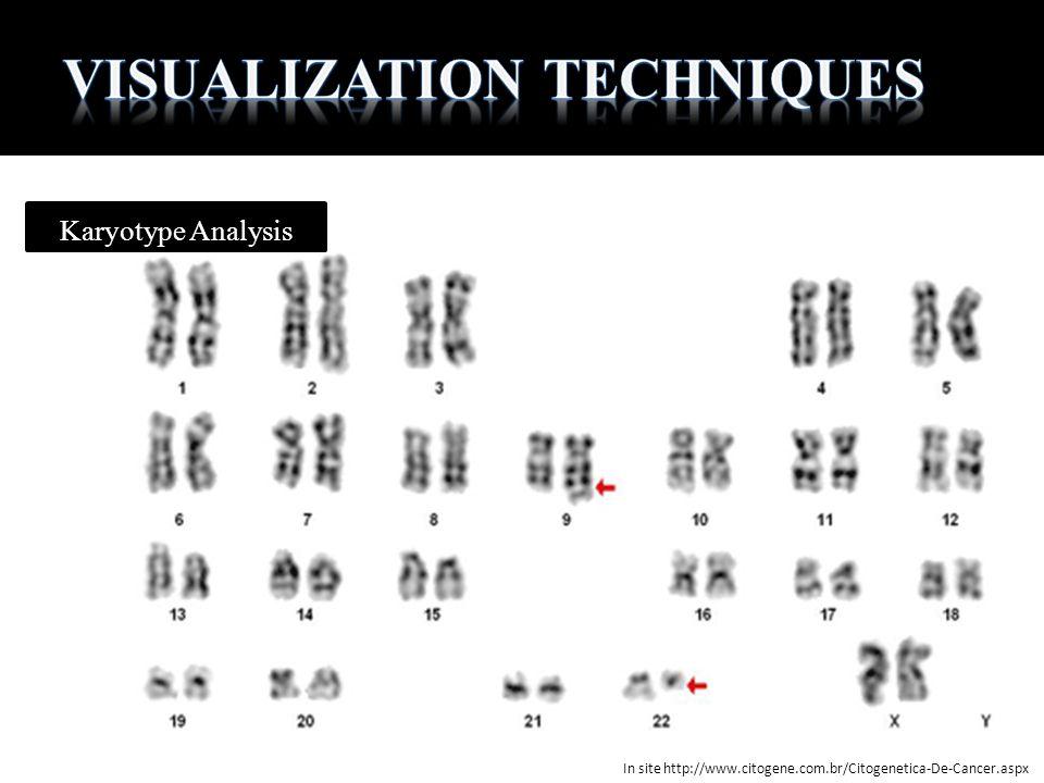 Karyotype Analysis In site http://www.citogene.com.br/Citogenetica-De-Cancer.aspx