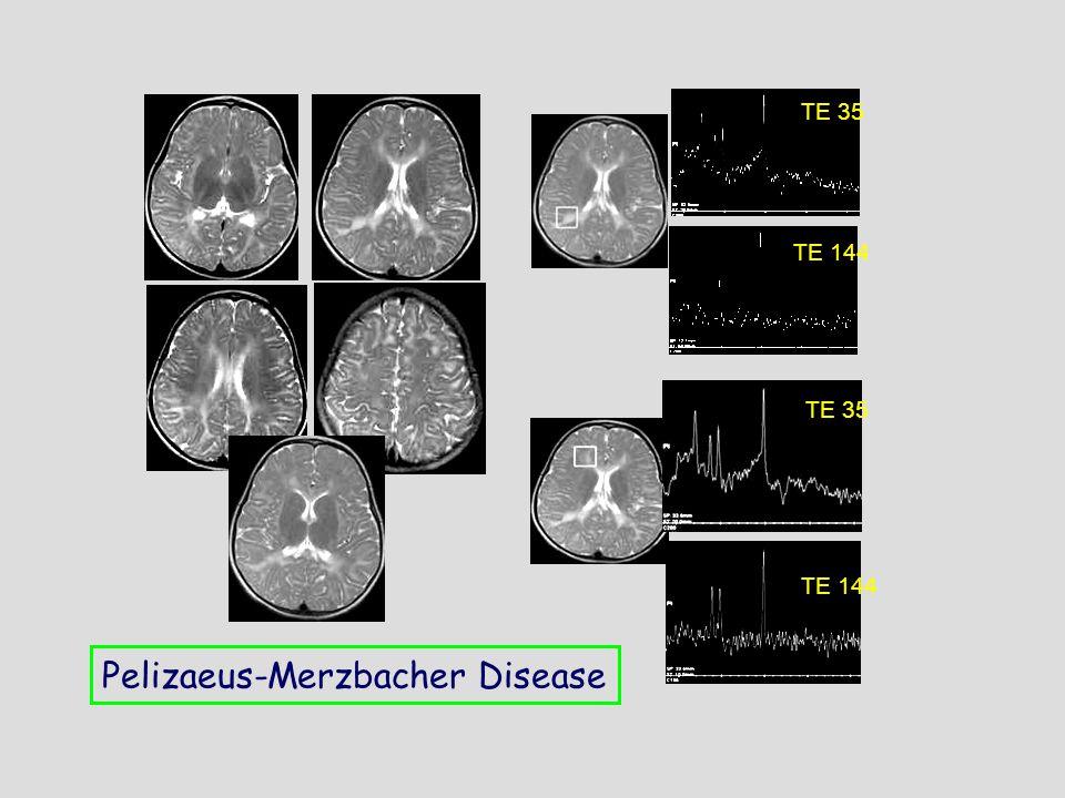TE 35 TE 144 TE 35 TE 144 Pelizaeus-Merzbacher Disease