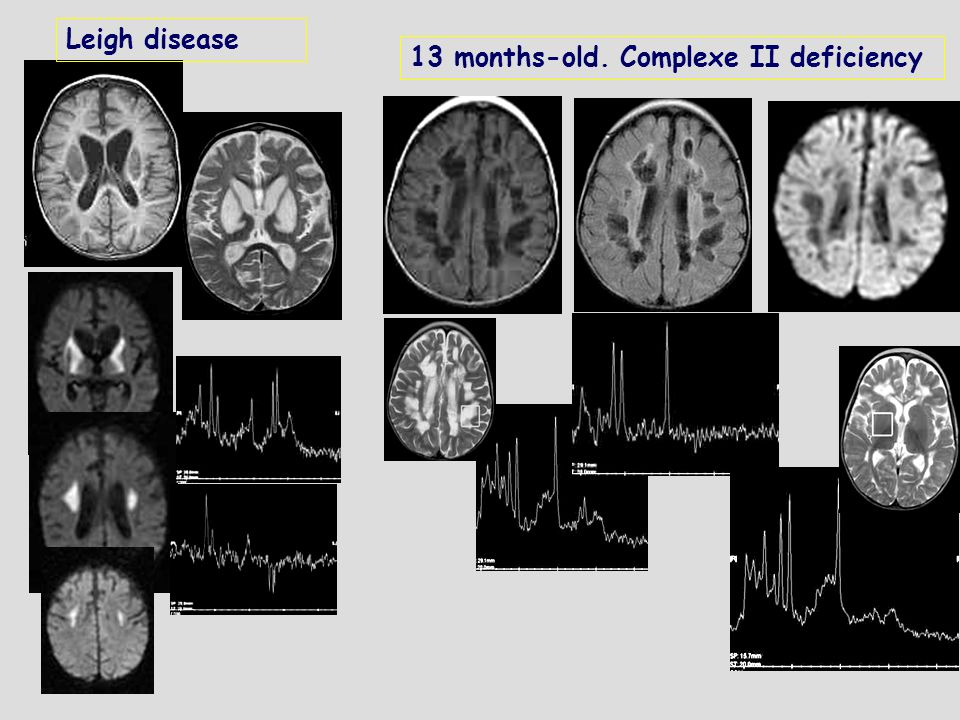 13 months-old. Complexe II deficiency Leigh disease