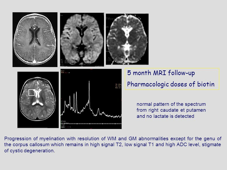 5 month MRI follow-up Pharmacologic doses of biotin Progression of myelination with resolution of WM and GM abnormalities except for the genu of the corpus callosum which remains in high signal T2, low signal T1 and high ADC level, stigmate of cystic degeneration.