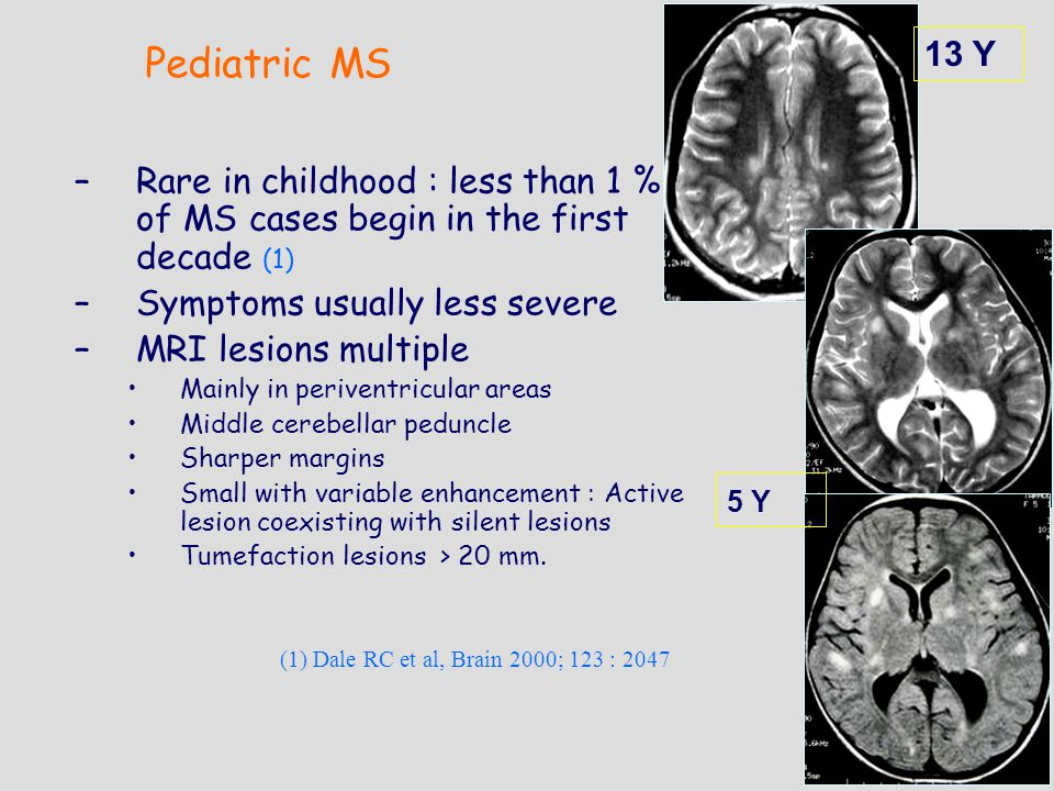 – –Rare in childhood : less than 1 % of MS cases begin in the first decade (1) – –Symptoms usually less severe – –MRI lesions multiple Mainly in periventricular areas Middle cerebellar peduncle Sharper margins Small with variable enhancement : Active lesion coexisting with silent lesions Tumefaction lesions > 20 mm.