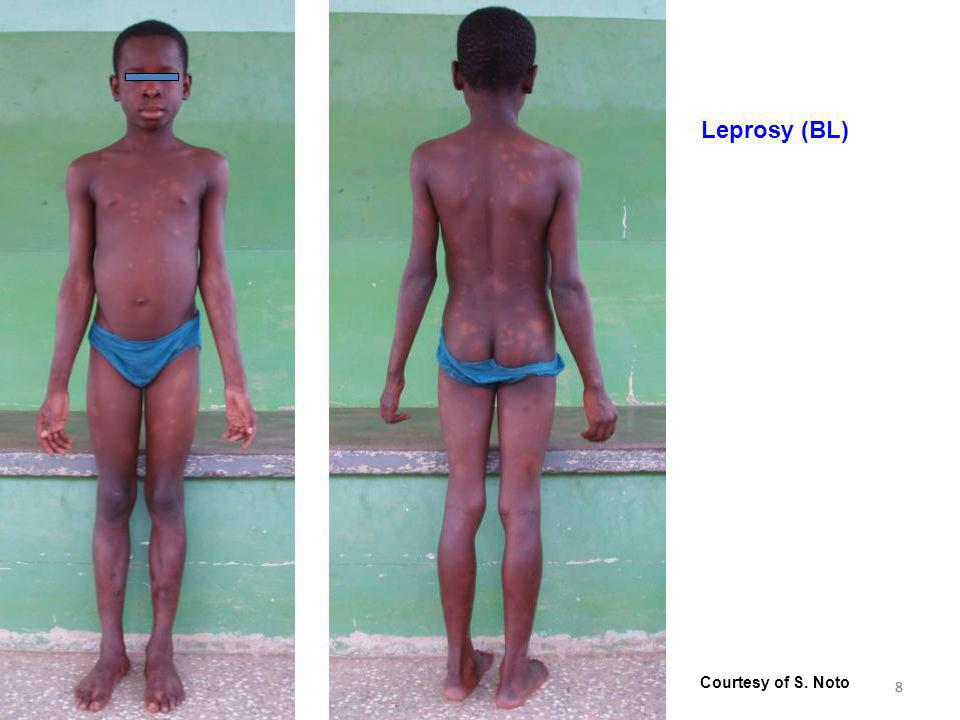 leprosy mailing list - October 2011 - Part I Introduction 88 Leprosy (BL) Courtesy of S. Noto