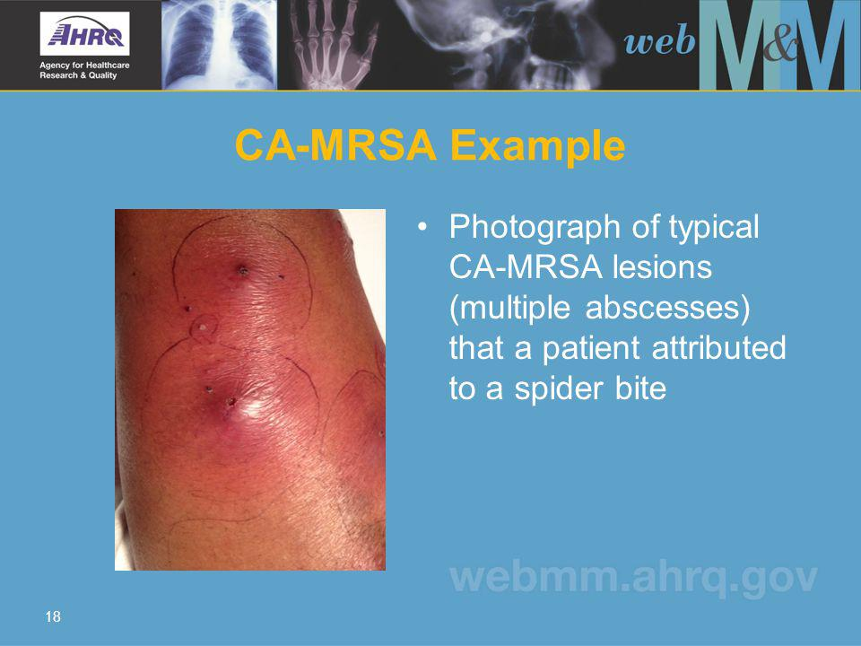 CA-MRSA Example Photograph of typical CA-MRSA lesions (multiple abscesses) that a patient attributed to a spider bite 18