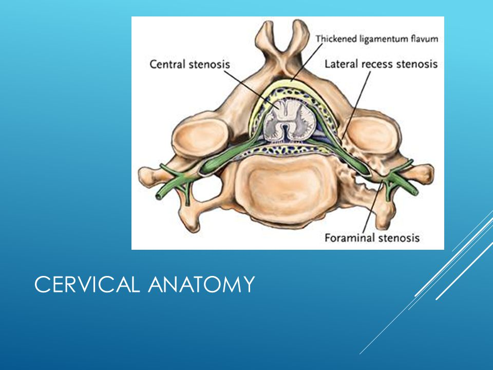 CERVICAL DISC HERNIATION ANTERIOR CERVICAL DISCECTOMY AND FUSION Risk of adjacent level deterioration is 100% Risk of subsequent clinical injury unknown Player assumes risk of subsequent injury.