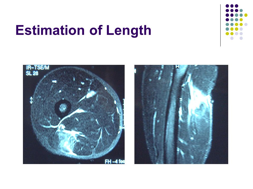 Estimation of Length