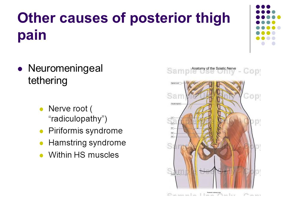 Other causes of posterior thigh pain Neuromeningeal tethering Nerve root ( radiculopathy) Piriformis syndrome Hamstring syndrome Within HS muscles