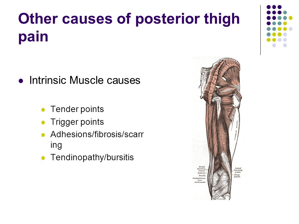 Other causes of posterior thigh pain Intrinsic Muscle causes Tender points Trigger points Adhesions/fibrosis/scarr ing Tendinopathy/bursitis