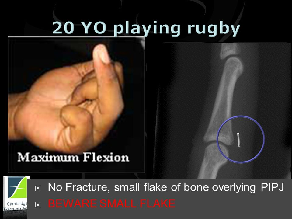 www.cambridgefractureclinic.co.uk Avulsion fracture Base of proximal phalanx Avulsion FDP, rugger jersey finger No Fracture, small flake of bone overlying PIPJ BEWARE SMALL FLAKE