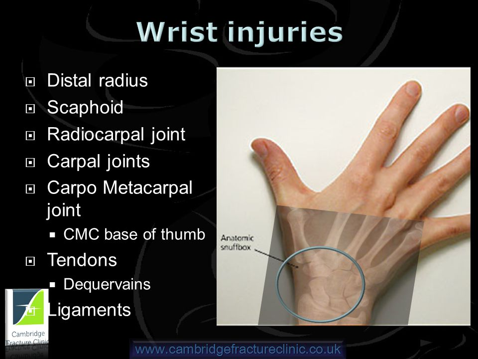 www.cambridgefractureclinic.co.uk Distal radius Scaphoid Radiocarpal joint Carpal joints Carpo Metacarpal joint CMC base of thumb Tendons Dequervains Ligaments