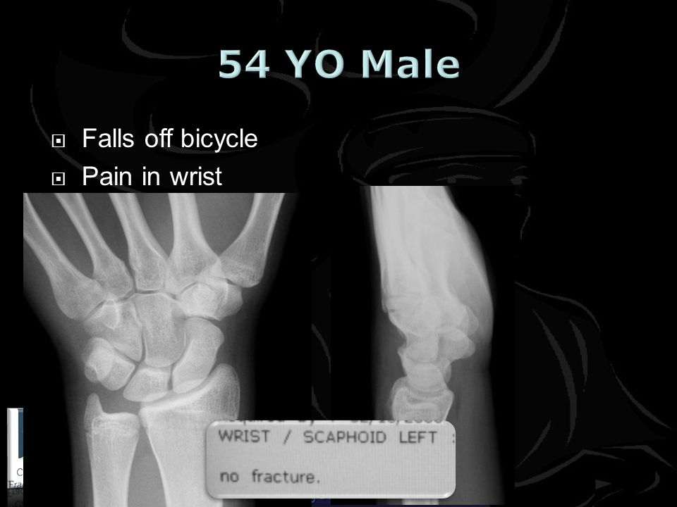 www.cambridgefractureclinic.co.uk Falls off bicycle Pain in wrist