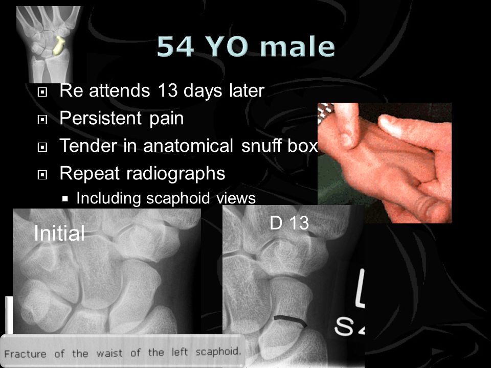 www.cambridgefractureclinic.co.uk Initial D 13 Re attends 13 days later Persistent pain Tender in anatomical snuff box Repeat radiographs Including scaphoid views